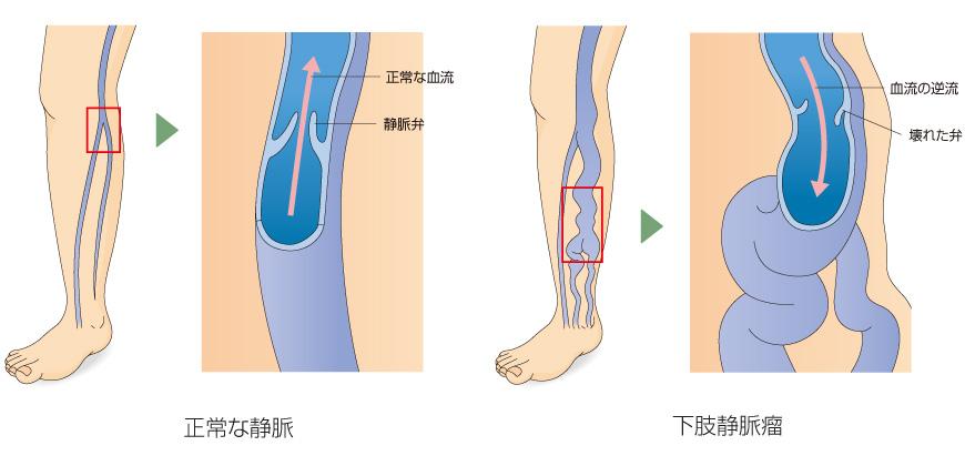 下肢静脈瘤とは?|下肢静脈瘤専門の日帰り手術・ …